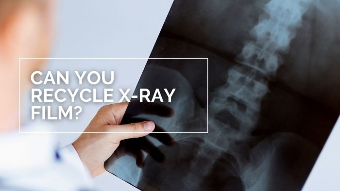 Can You Recycle X-Ray Film